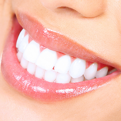 Chipped Teeth treatment in Peoria