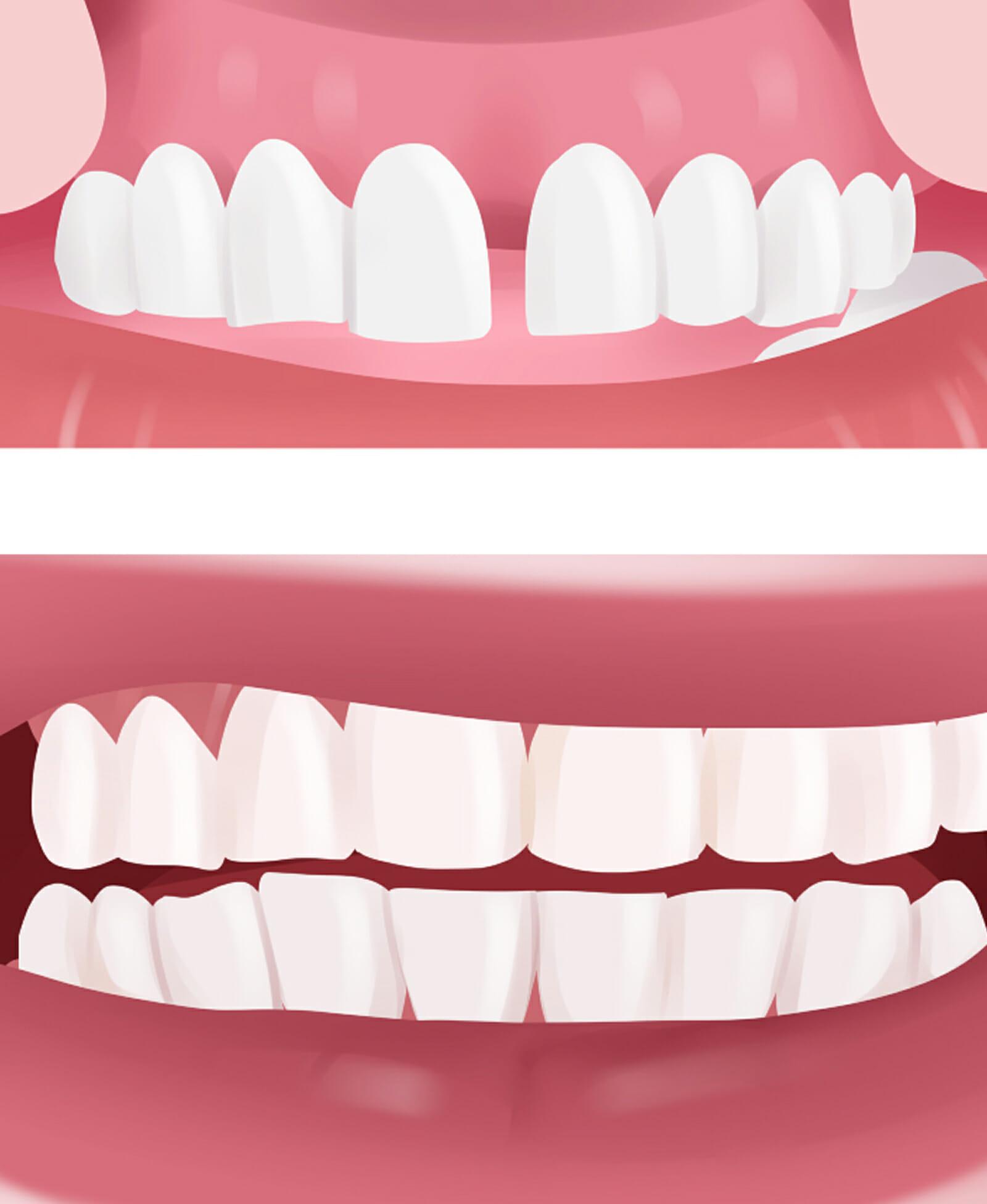 Dental Bonding procedure in Peoria