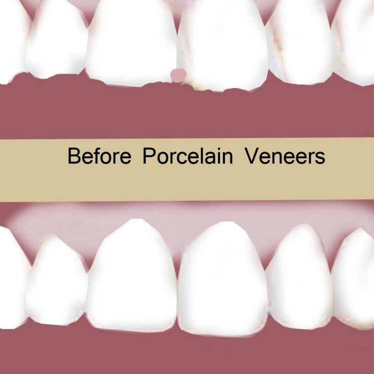 Dental veneers treatment in Peoria