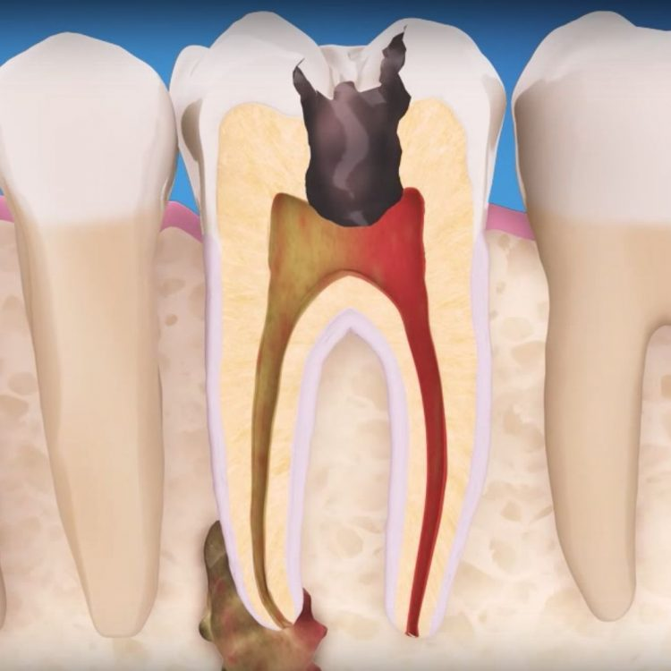 Root Canal Therapy in Peoria