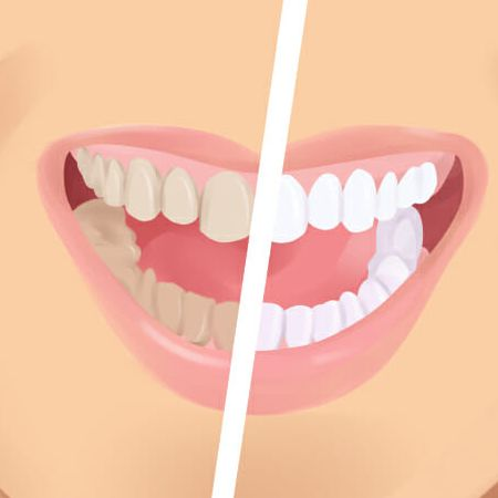 Tooth discoloration in Peoria AZ