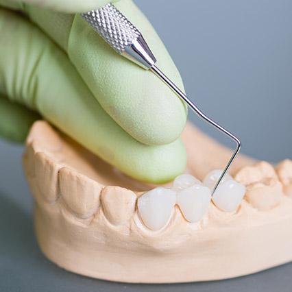 dental Bridges in Peoria