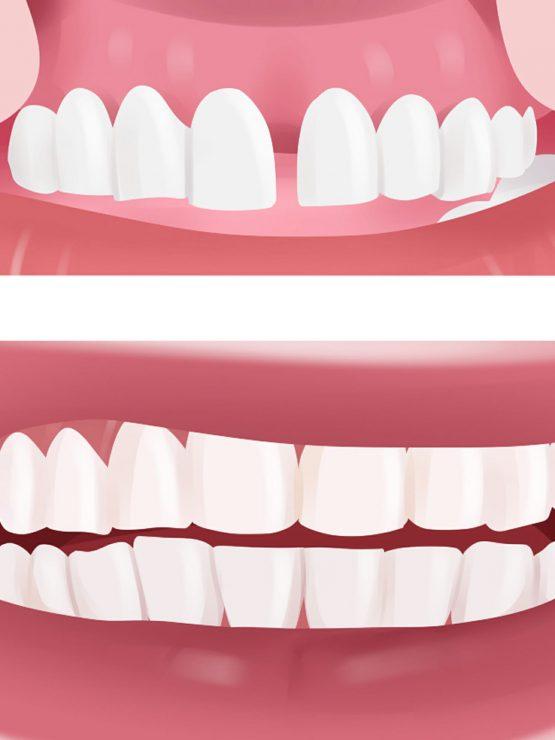 dental implant maintenance in Peoria