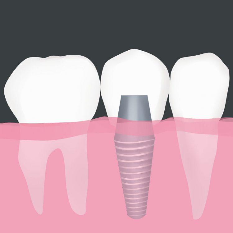 dental implants in Peoria