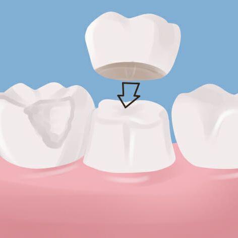 denture implants solution in Peoria