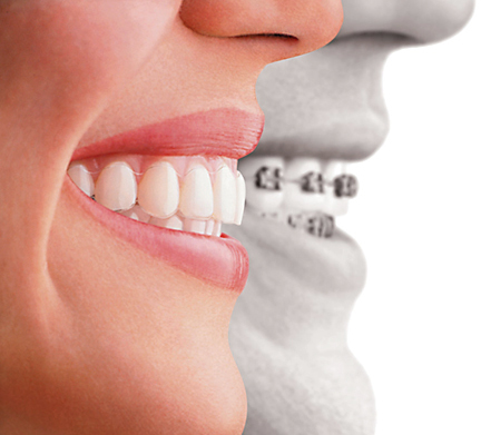 mouthguard for braces in Peoria